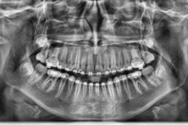 Pax I Digital Radiography Portable Types Of Dental X Ray